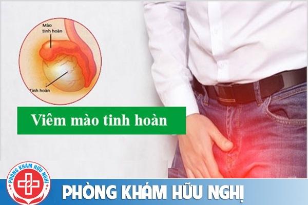 Hỗ trợ chữa viêm mào tinh hoàn ở đâu tốt tại Đà Nẵng?