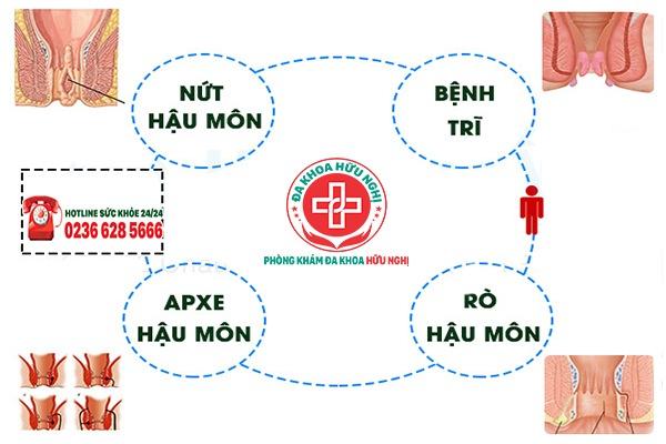 benh-hau-mon-thuong-gap