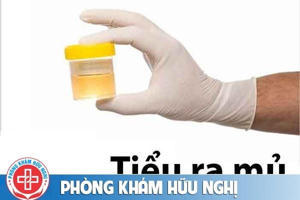 Cách chữa tiểu ra mủ như thế nào?