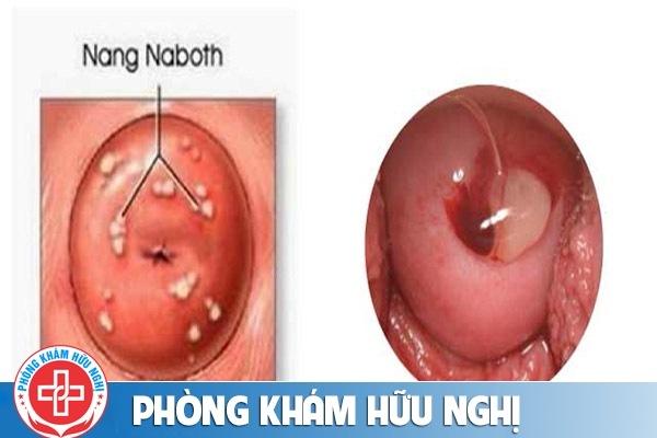 nang-naboth