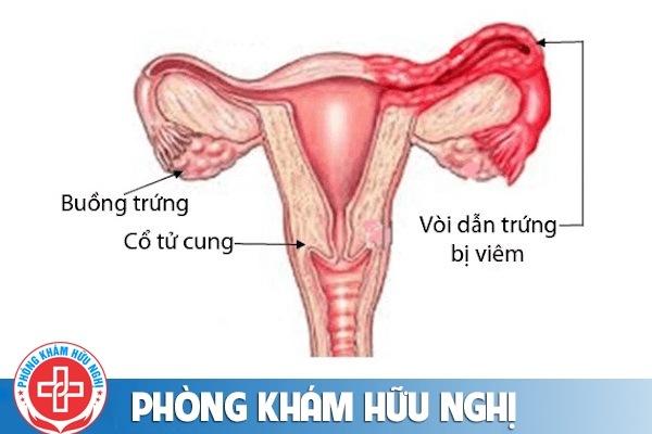 Viêm ống dẫn trứng là bệnh gì chữa được không?
