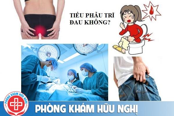 Tiểu phẫu trĩ an toàn ít đau tại Phòng khám đa khoa Hữu Nghị