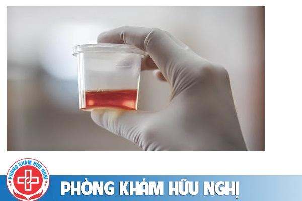 Chữa tiểu ra máu bằng cách nào hiệu quả?