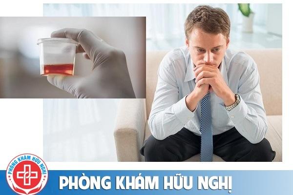 Tiểu ra máu ở nam nguyên nhân và cách điều trị