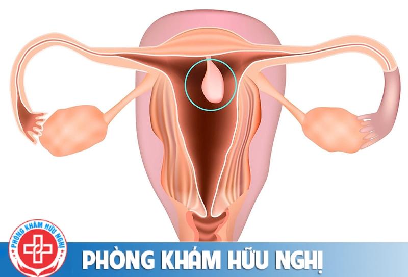 20201030-polyp-thuong-duoc-xem-la-lanh-tinh-1