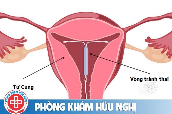 Đặt vòng tránh thai sau phá thai có được không?