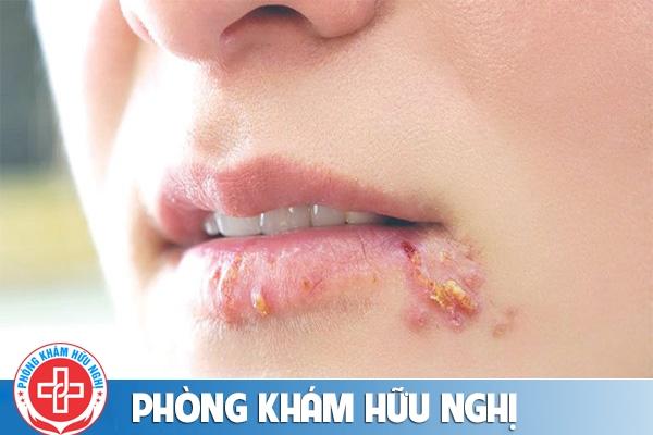 Nổi mụn ở miệng là bị bệnh gì?